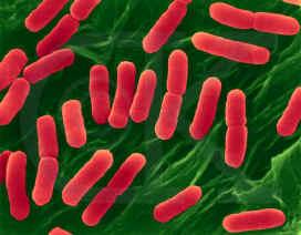 Microorganismos procariotas y eucariotas diferencias y